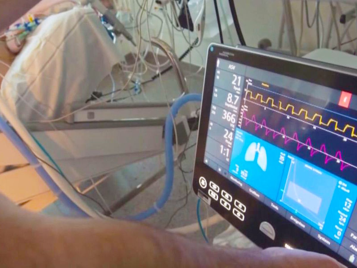 MUSC doctors working on new technology for possible ICU surge