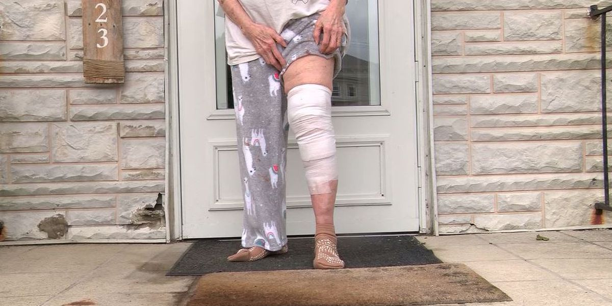 83-year-old woman afraid to leave Pa. home after dog attack