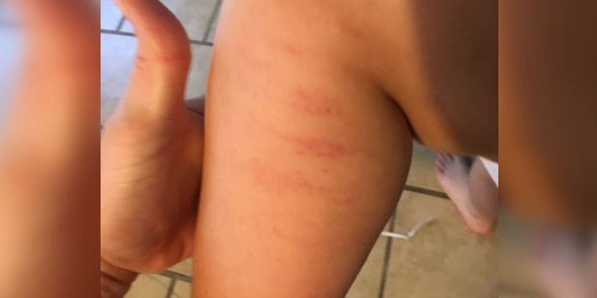 Mom said she found bruises on nonverbal son with autism after school